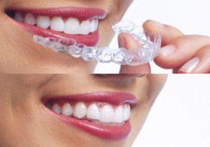 Ortodonzia Invisibile - DENTALMED STUDIO DENTISTICO DR. BEGHINI ANGELO CASSANO D'ADDA