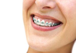 Ortodonzia - DENTALMED STUDIO DENTISTICO DR. BEGHINI ANGELO CASSANO D'ADDA