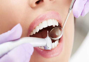 Endodonzia - DENTALMED STUDIO DENTISTICO DR. BEGHINI ANGELO CASSANO D'ADDA
